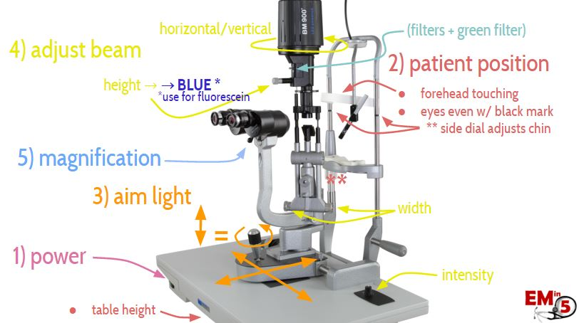 Slit Lamp Anatomy